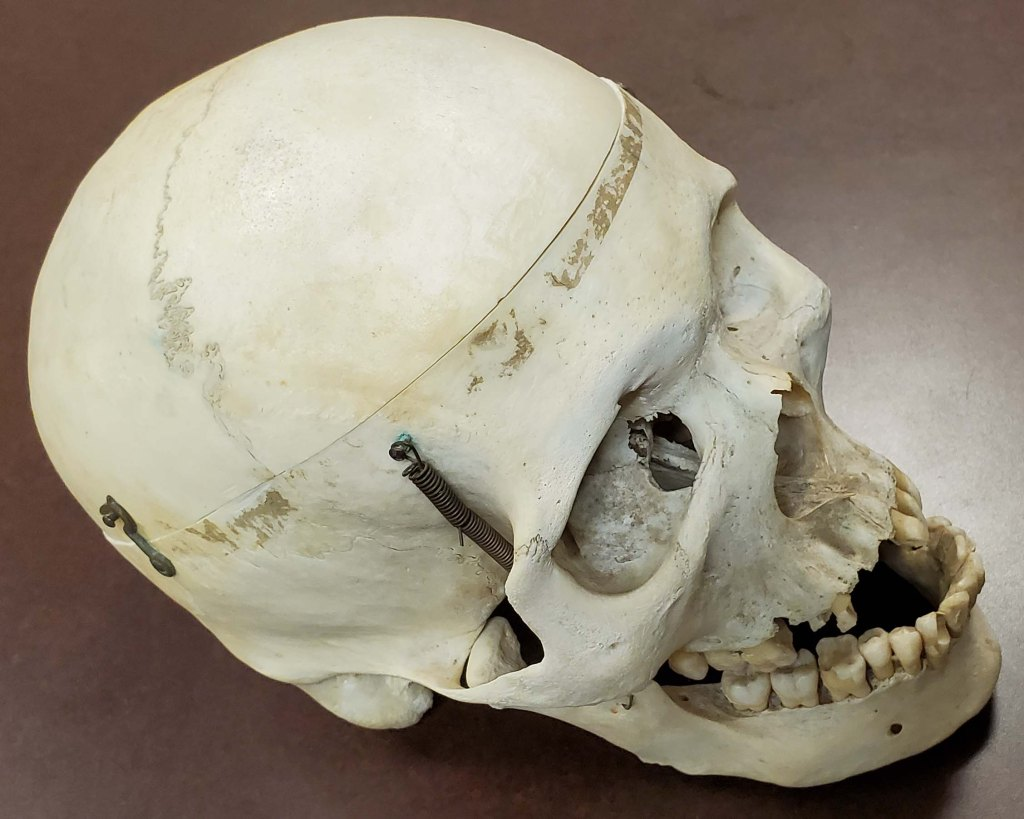 human skull from side