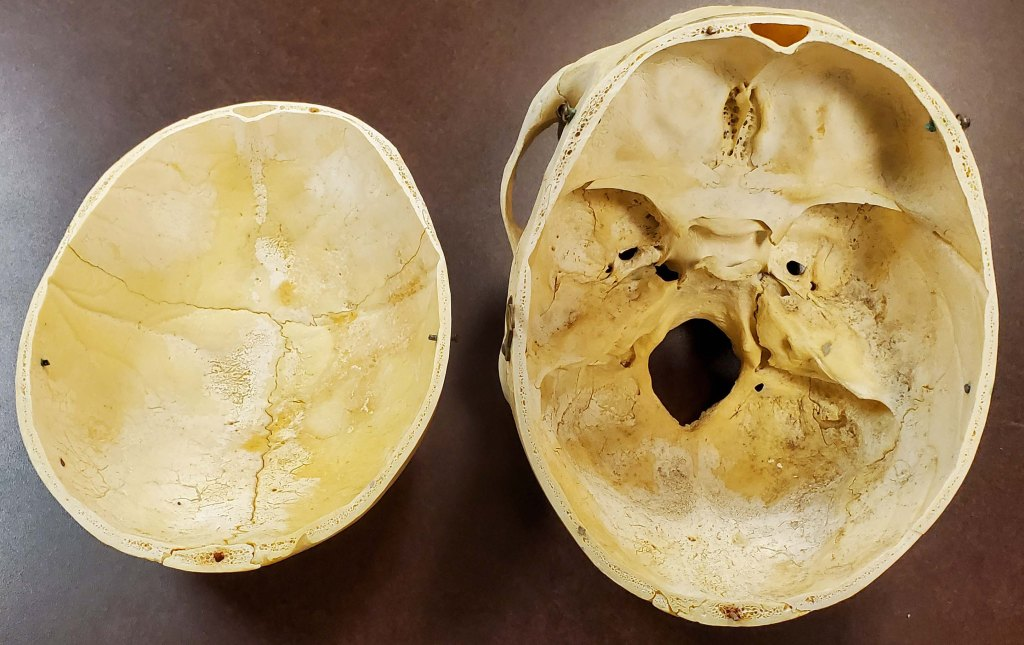 human skull with top of cranium removed